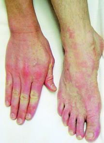 Case 20 yo male acute-onset pain & swelling of hands, feet, oropharynx increasing pruritus of hands & feet petechial eruption over edematous, tender, distal extremities gloves and